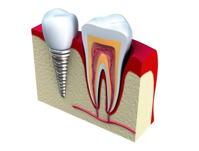Single Dental Implants Pomona, NY